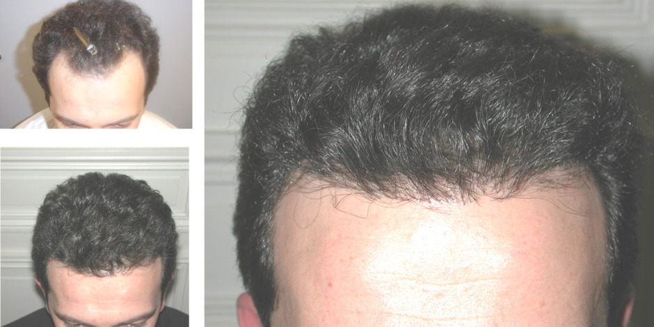 hairlinebeforeandafter