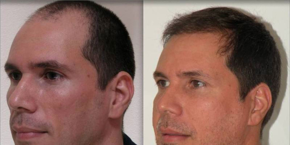 hairlinebeforeandafter10