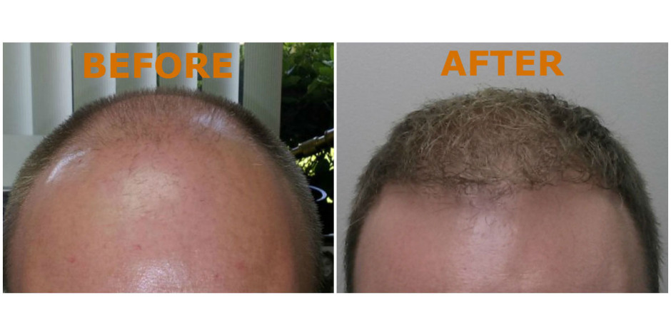 hairlinebeforeandafter3