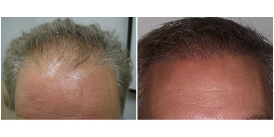 hairlinebeforeandafter4