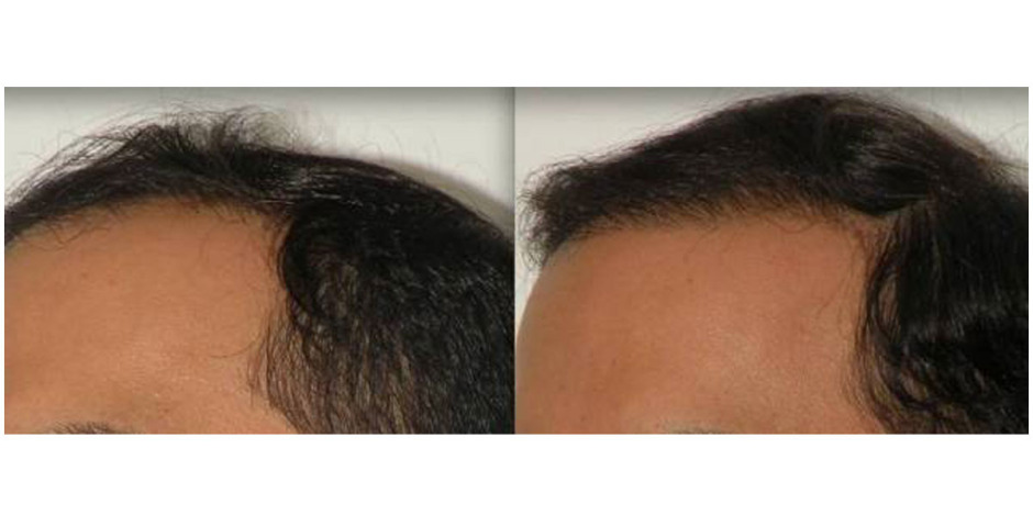 hairlinebeforeandafter9